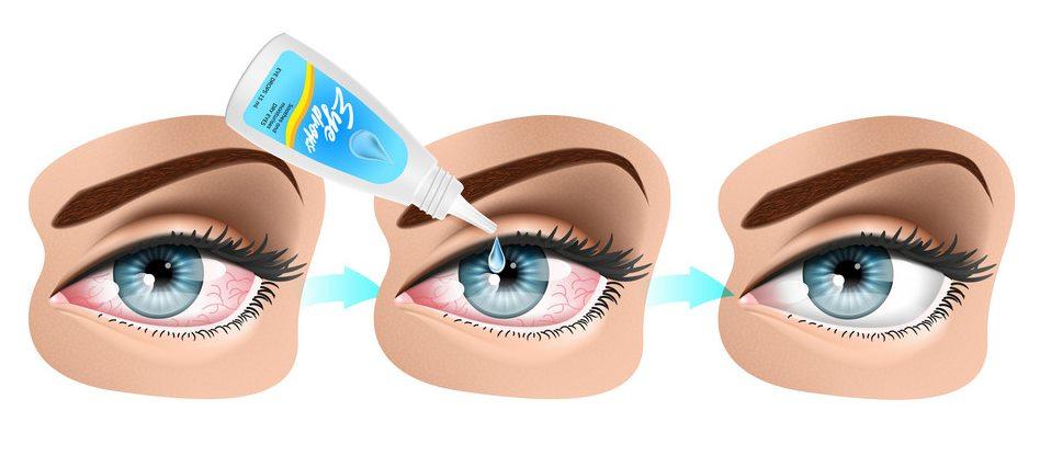 Dùng thuốc nhỏ mắt là cách trị hội chứng khô mắt phổ biến nhất